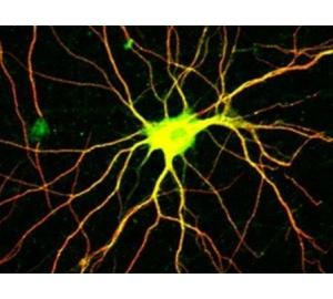 Раскрыта схема работы белка, регулирующего рост нервных клеток